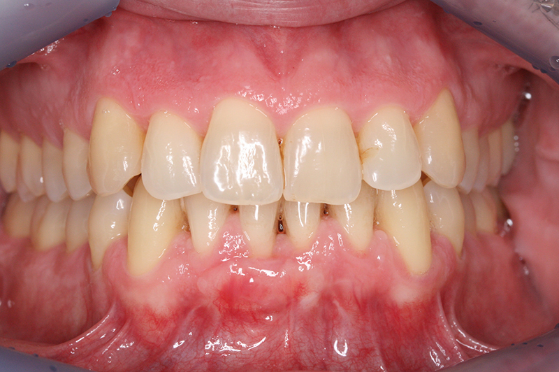 Cirugi Periodontal sept 2012