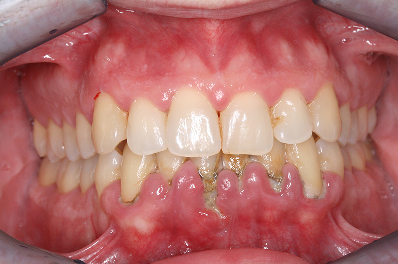 Cirugia Periodontal abril 2010