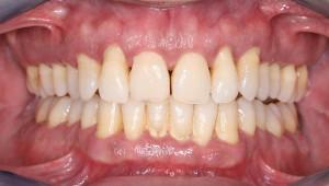 periodontitis-300x170